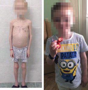 xót xa lý do bé trai 11 tuổi chỉ năng có 12 kg