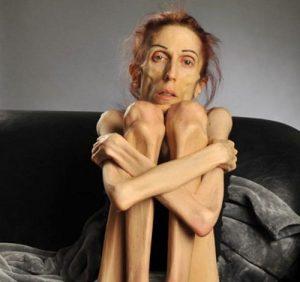 lột xác ngoạn mục của cô gái gầy gò da bọc xương, cô gái 38 tuổi nặng 18kg