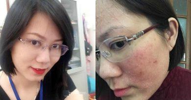 Da hết mụn đầu đen, mờ thâm và trở nên trắng hồng rạng rỡ nhờ đắp mặt nạ này 1-2 lần / tuần