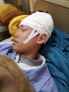 học sinh lớp 9 nhập viện nghi bị thầy giáo đánh tụ máu đầu