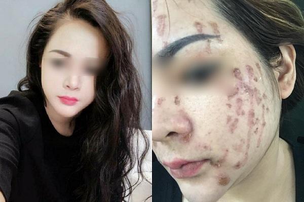 chấm nạm tại spa cô gái hỏng cả khuôn mặt