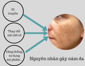 Nguyên nhân gây nám da